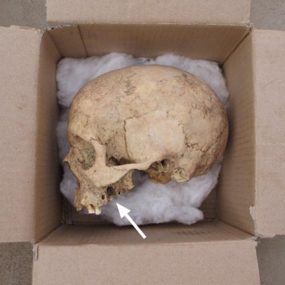 A rare intact skull from Amara West with a large dental abscess which even perforated the nasal sinus.