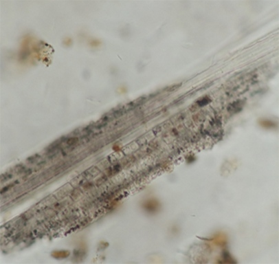 Phytolith of a sedge-plant from Amara West. Image: Philippa Ryan